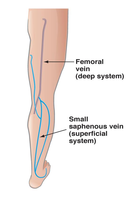 Vein Disease | Heart Vein & Vascular