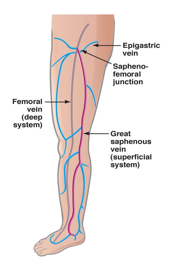 Vein Disease Heart Vein Vascular