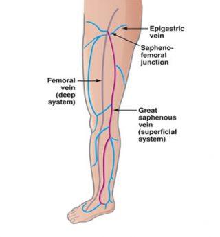 vein disease