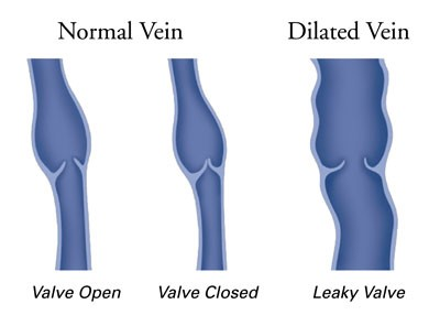 Diagram Of Venous Valves In Leg - DIY Enthusiasts Wiring Diagrams •
